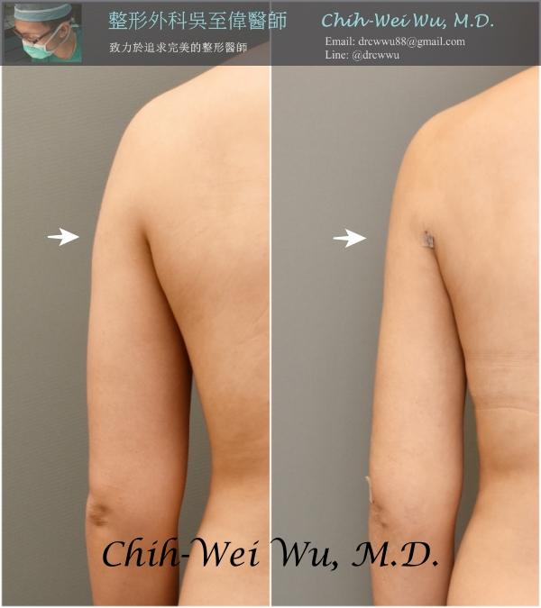 手臂抽脂:上臂與側背的抽脂,左為術前,右為術後