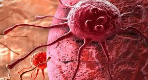 Obat Herbal Untuk Mengatasi Kanker Payudara