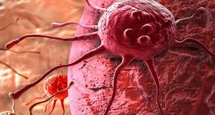 Nama Obat Untuk Kanker Payudara