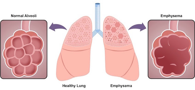 Emphysema is a type of lung disease characterized by shortness of breath