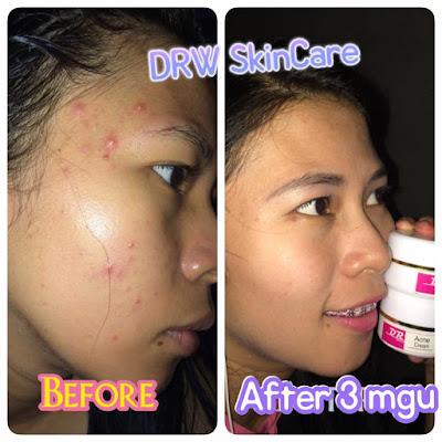 Testimoni Drw Skincare SA
