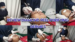 Review Treatment Diamond Peel Purifying di Klinik Perawatan Dermies Citraland Jakarta