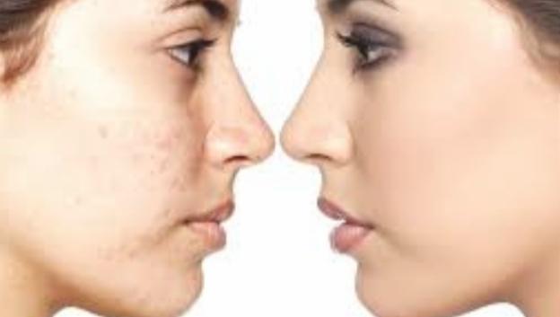 पपीता है चेहरे के लिए गुणों की खान, इस्तेमाल की विधि और सावधानियों का रखे ध्यान