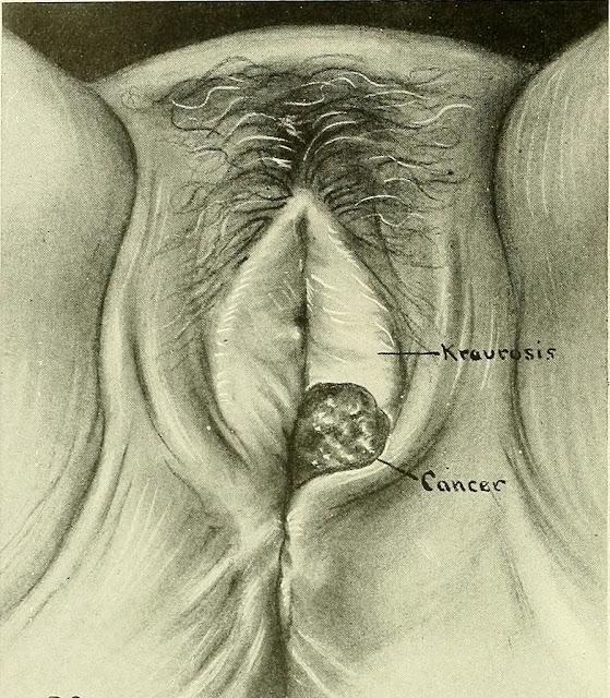معلومات عن سرطان الفرج