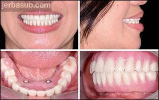 تجربتي مع طقم الاسنان المتحرك