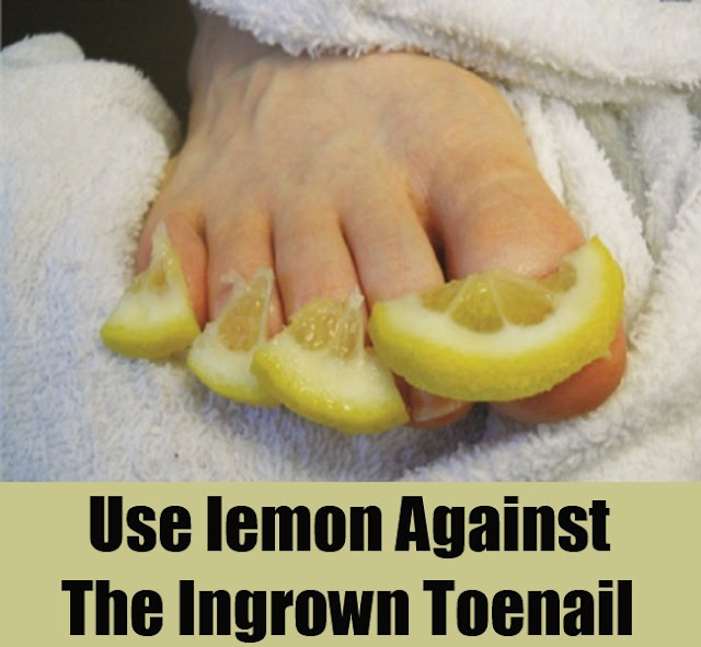 Top Methods To Cure Ingrown Toenail | Home Remedies for Ingrown Toenails