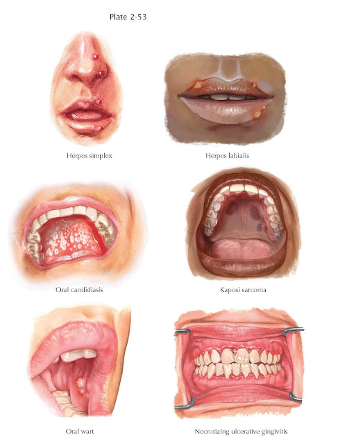 Oral Manifestations of Immunocompromised Conditions