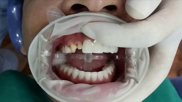 Trồng răng giả uy tín TPHCM