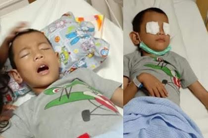 Derita Bocah 7 Tahun di Jambi Alami Iritasi Mata Akibat Asap Karhutla