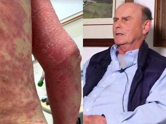 Пациент сделал вакцину от CoViD и через четыре дня в шоке обнаружил, что его кожа начала слезать