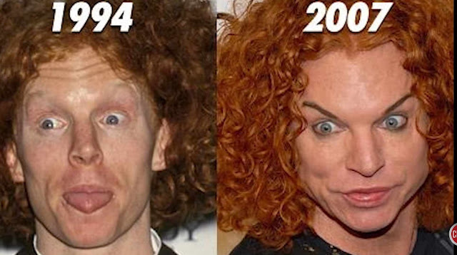 Carrot Top; an American stand-up comedian and actor After Surgery