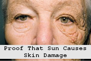https://foreverhealthy.blogspot.com/2012/06/proof-that-sun-does-indeed-cause-skin.html#more