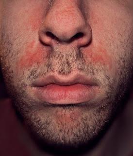 Seboreik Dermatit Nedir? Nasıl Tedavi Edilir?