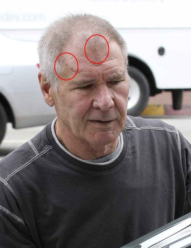Harrison Ford shows marks of the accident he suffered in March