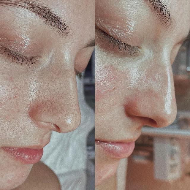 Masque à la gélatine non aromatisée et au lait pour enlever les points noirs