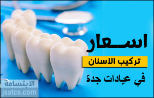 أسعار تركيب الأسنان في جدة