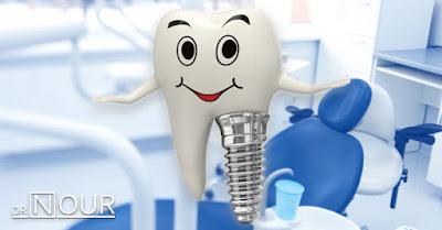 معلومات عامة عن زراعة الاسنان