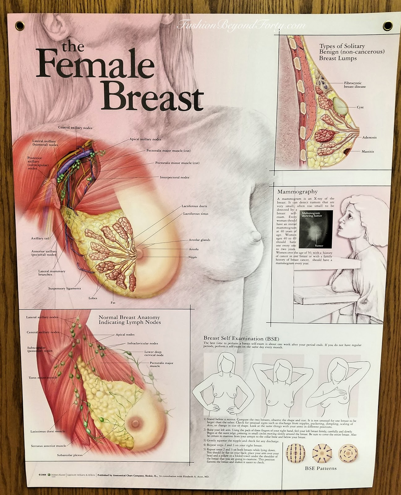 Fibrocystic Breast Disease - My Experience + 10 Home Remedies For Fibrocystic Breast Disease