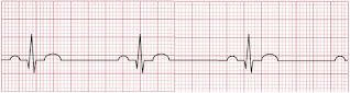An ECG of a sinus bradycardia.