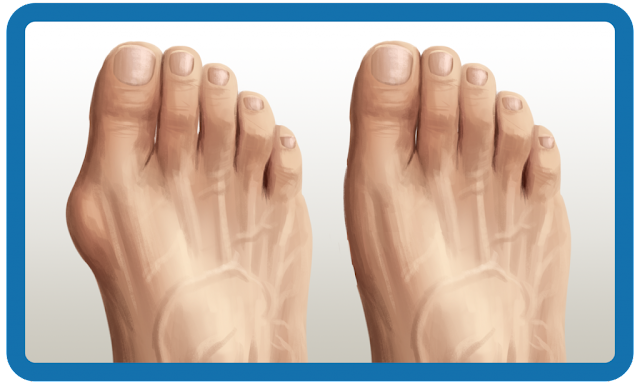 Comment prendre soin des pieds pour les empêcher de se déformer par les oignons