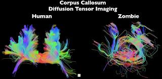 Timothy Verstynen Bradley Voytek - Zombie Research Society - zombie brain corpus callosum