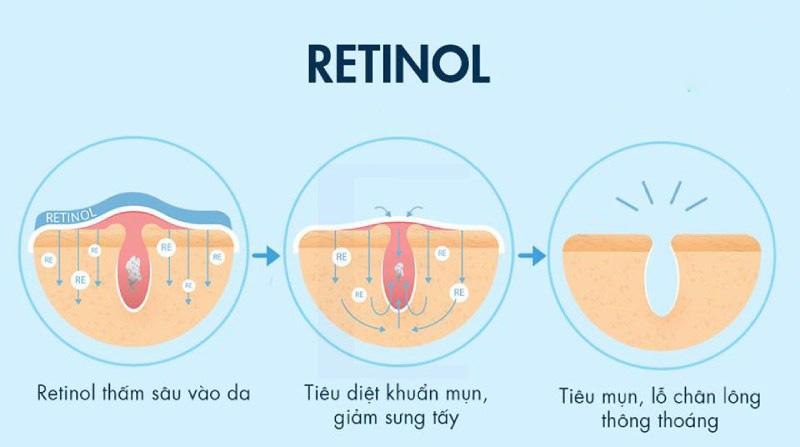 Cơ chế trị mụn của Retinol