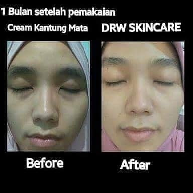 Testimoni Eye Cream Drw Skincare