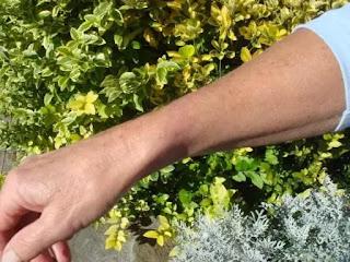 plaise cicatrisée