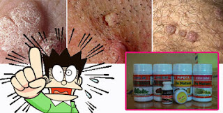 Daging Tumbuh Di Kemaluan Bahaya Penyakit Apa