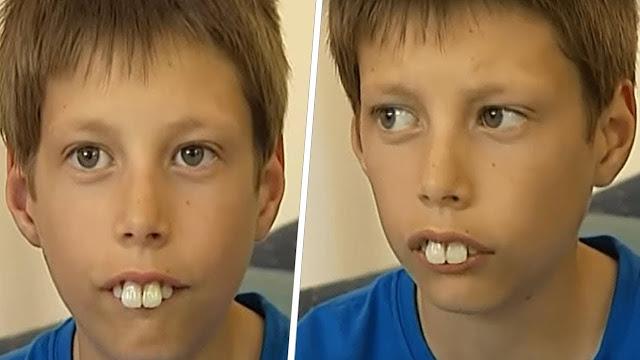 В детстве над ним издевались из-за его зубов. Но спустя годы он удивил всех!