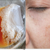 In 2 Days - Remove Dark Spots, Black Spots At Acne Scars Using These Natural Remedies