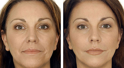 Facelift Consultation