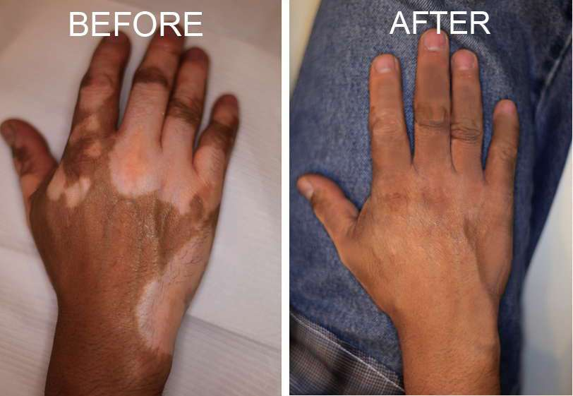 Obat Salep Untuk Penyakit Vitiligo QNC JELLY GAMAT