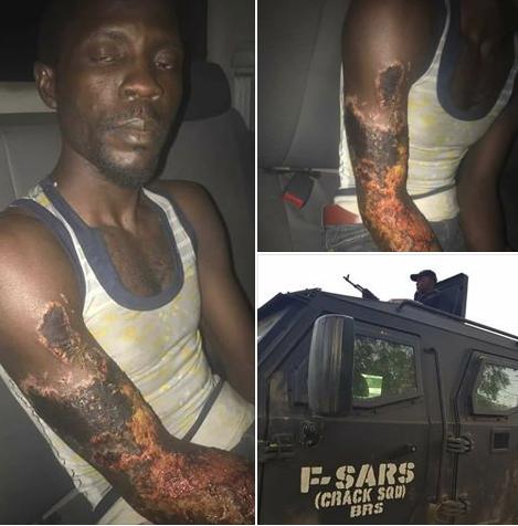 Police nabs acid attacker of Fatima Usman in Kano