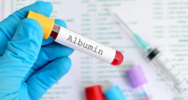 Manfaat Albumin Untuk Stroke