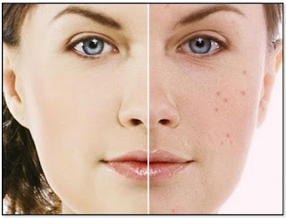 7 Lіttlе Knоwn Acne Skin Care Secrets