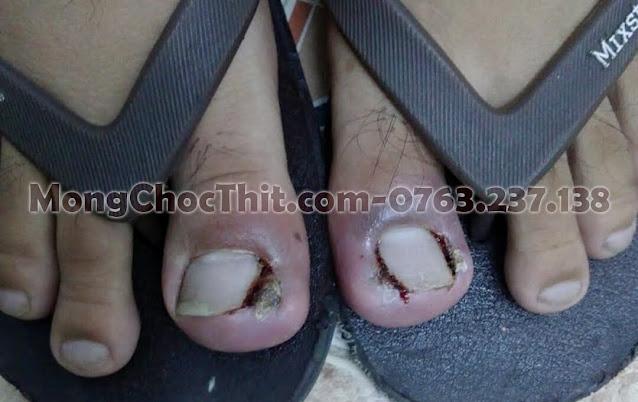 Thối khoé móng 2 ngón chân cái