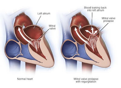Mitral valve prolapse causes