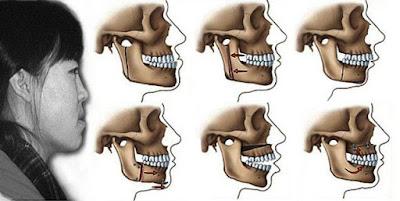 Niềng răng móm có hiệu quả không?
