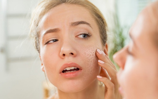 Bong tróc vảy, ngứa ngáy là những tác hại điển hình nhất của da khô
