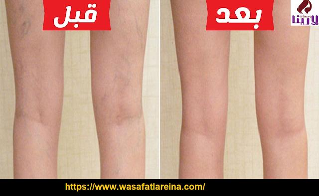 خطوات تساعدك في علاج دوالي الساقين بدون جراحة