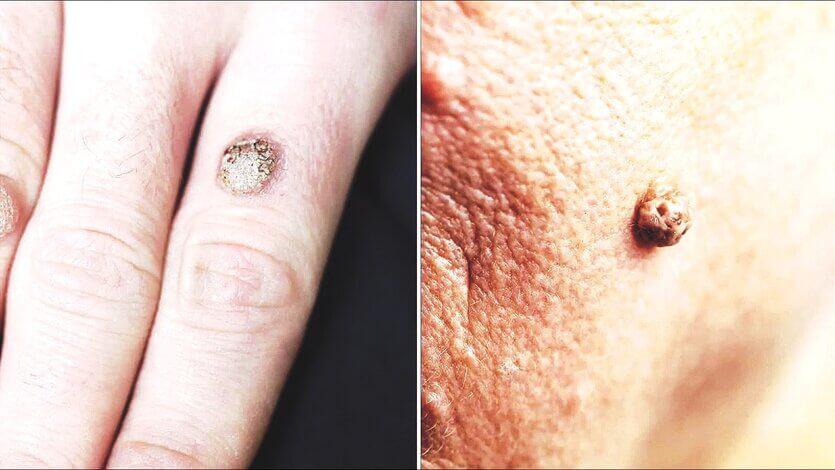Warts and Skin Tags