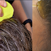Top 5 Ways To Remove Head Lice In Just 15 Minutes and Remove Dandruff Naturally