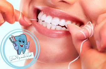 طريقة التخلص من تسوس الأسنان في يوم واحد