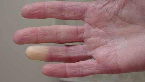 ठंड में हाथ पैरों का रंग बदलना इस गंभीर बीमारी के लक्षण हो सकते हैं
