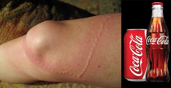 Truques de Limpeza com Coca-Cola - Alívio nas queimaduras de águas-vivas