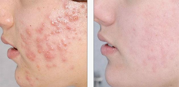 À la maison du visage pour l'acné