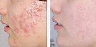 Masque pour traiter les boutons d'acné spécial peau sèche