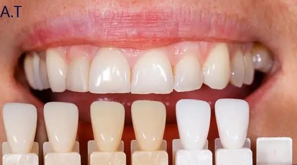 تبيض وتجميل الأسنان