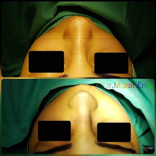 Micromotor Assisted Rhinoplasty, Nose Job Istanbul,Female Nose Aesthetic Turkey,